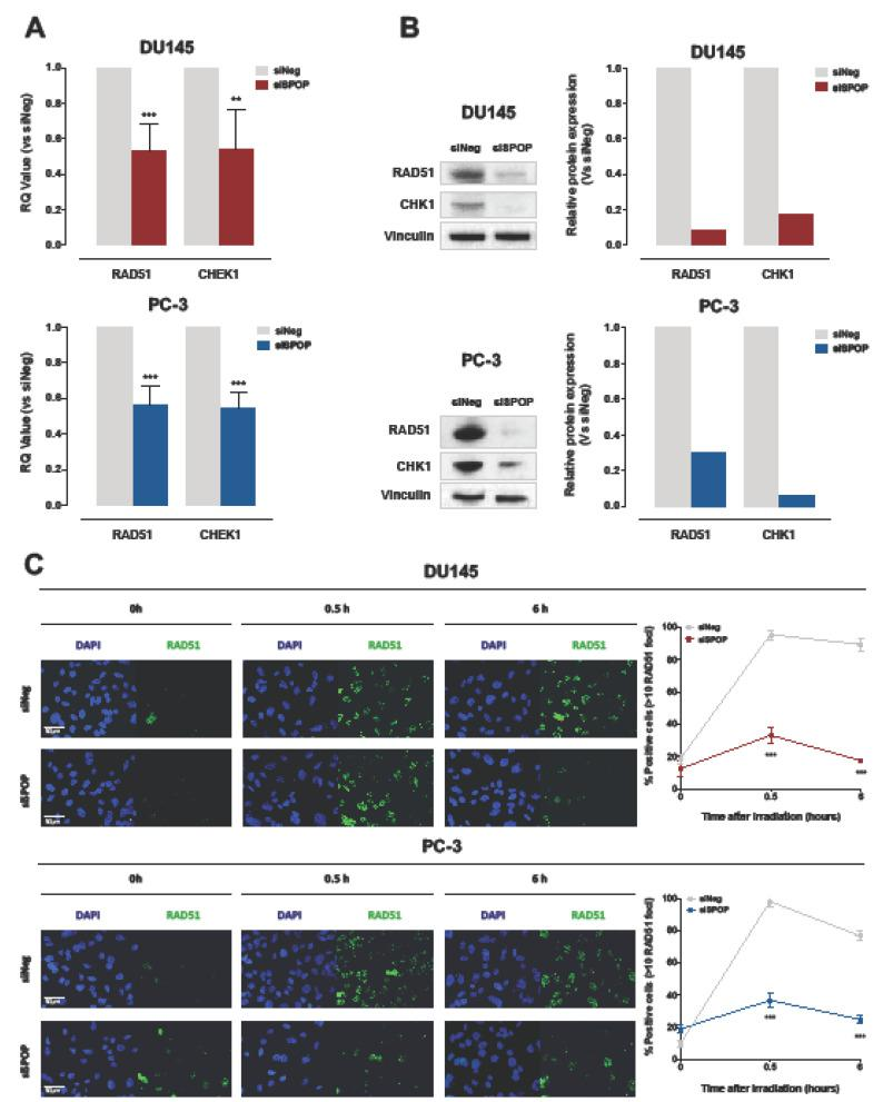 SPOP knockdown impairs HR via RAD51 and CHK1 downregulation. ( A ) qRT-PCR detection of RAD51 and CHEK1 transcript levels in DU145 (upper panel) or PC-3 (lower panel) cells at 48 h upon siSPOP transfection, compared to controls, normalized to GAPDH. Data are reported as relative quantity (RQ) ± SD with respect to siNeg transfectants. ( B ) Western blot analysis and relative quantification of RAD51 and CHK1 protein levels in DU145 and PC-3 cells at 48 h upon siSPOP transfection. Vinculin was used as equal protein loading control. ( C ) Representative immunofluorescence microphotographs of nuclear RAD51 foci (cell nuclei: blue; RAD51 foci: green) in DU145 (upper panel) or PC-3 (lower panel) cells at 48 h upon transfection with siSPOP at 0, 0.5 and 6 h after exposure to 6 Gy irradiation and relative quantification, expressed as mean percentage of cells containing > 10 RAD51 foci at 0, 0.5 and 6 h after exposure to 6 Gy irradiation. Data are reported as mean ± SD values from three independent experiments. The level of significance was represented as ** p