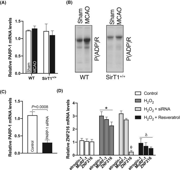 PARP‐1 regulates the ZNF216 gene. Male, ~20‐ w old, SirT1 +/+ mice and their age‐matched WT (C57BL/6J) control mice were subjected to 60'MCAO or sham surgery followed by 3 d of reperfusion. RNA or cell lysate were extracted from paretic tibialis anterior (PTA) or the corresponding TA (CTA) muscle of sham mice in WT and SirT1 +/+ mice (n = 4). A, qPCR data showed PARP‐1 mRNA levels in the PTA and CTA muscles of WT and SirT1 +/+ mice (n = 4). B, Representative western blot images showed global protein parylation (PARP activity) in the TA muscles of WT and SirT1 +/+ mice (n = 3). C, Myotubes generatred from primary myoblasts were transfected with PARP‐1 siRNAs or control siRNAs for 48 h and total RNA was isolated and used in qPCR data to measure PARP‐1 mRNA levels. D, PARP‐1 siRNA transfected myotubes were treated with 125 μmol/L of H 2 O 2 with or without resveratrol for 4 h to measure ZNF216 mRNA levels in the total RNA using qPCR (n = 4). Values in each graph indicate the mean ± SEM. * indicates comparison vs control. φ and δ indicate the comparison of the specific gene in the H 2 O 2 ‐treated group