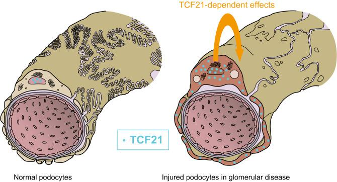 Mechanism hypothesis of TCF21 expression in injured podocytes of glomerular disease. TCF21 expresses in nucleus of normal podocytes on glomerular capillary (left). By contrast, TCF21 highly expresses in both nucleus and cytoplasm of injured podocytes on glomerular disease including nephrotic syndrome (right). Therefore, TCF21 overexpression may have cellular functional effect in injured podocyte. This image was drawn by MEDICAL EDUCATION INC. (Tokyo, Japan), and all copyright was assigned to corresponding author, J.U.