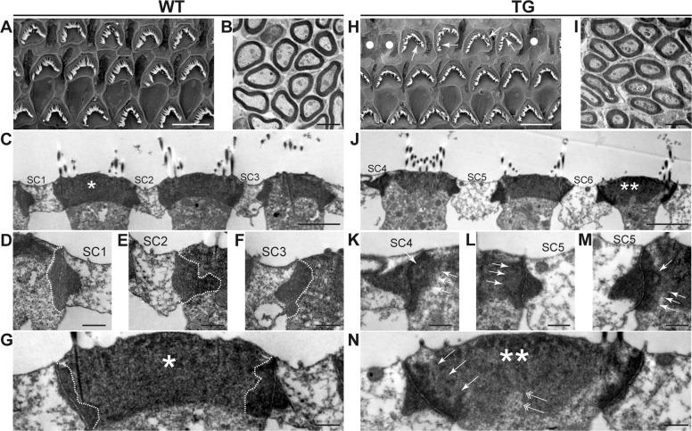 Ultrastructural analysis of the organ of Corti in 5-month-old DIA1 -TG mice by transmission electron microscopy. Five-month-old WT ( a–g ) and DIA1 TG/TG (TG) ( h–n ) mice were fixed for scanning electron microscopy (SEM) and transmission electron microscopy (TEM). a, h SEM images of OHCs and supporting cells (SCs). OHC loss (dots) and abnormal, such as short and sparse (arrows), stereocilia in TG mice. b , i Peripheral nerves at the osseous spiral lamina at the basal turn of the cochlea in WT ( b ) and TG mice ( i ). c–g, j–n High magnification views of ultrathin section of OHCs at the distal portion of the middle turn (close to the basal turn) of the cochlea by TEM. Magnification views of apical junctional complexes (AJCs) and cuticular plates of OHCs in WT ( c ) and TG ( j ) mice were shown in d – g and k – n , respectively. Note the hazy (arrows in k – m ), ruffled peri-junctional actin belts (arrows in n ) and cuticular plates (double arrow in n ) of OHCs in TG mice, compared to smooth actin belts (dotted lines) in WT mice ( d – g ). Asterisk and double asterisks indicate the same OHCs, respectively. Scale bar: 5 μm ( a , h ), 2 μm ( b , c , i , j ), and 500 nm ( d – g , k – n ).