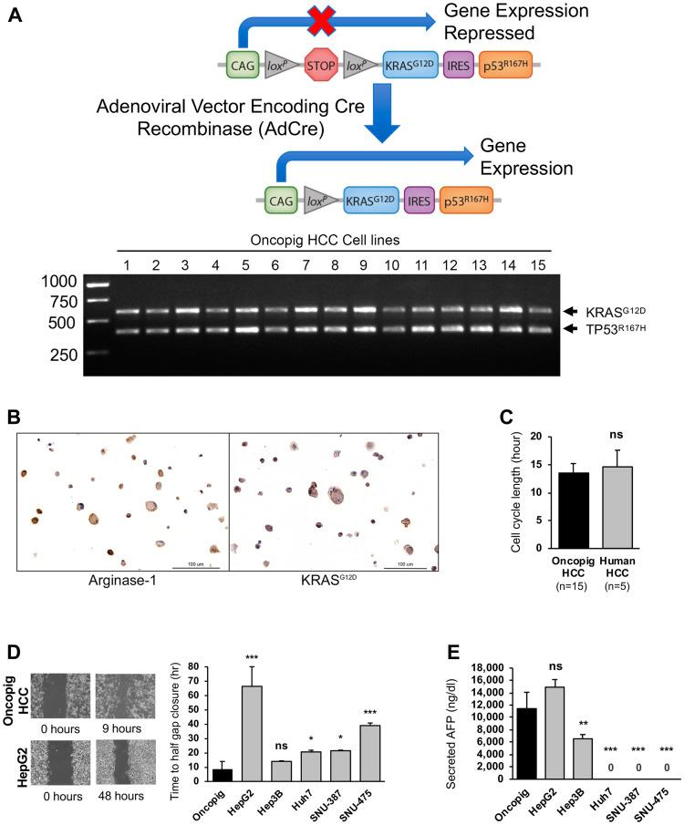 Oncopig and human HCC in vitro phenotypes. ( A ) Schematic of Oncopig transgene construct and agarose gel electrophoresis of RT-PCR products confirming Oncopig transgene ( KRAS G12D and TP53 R167H ) expression following exposure to AdCre. ( B ) Positive arginase-1 and KRAS G12D staining (brown) of cultured Oncopig HCC cell lines (20×). ( C ) Oncopig and human HCC cell cycle lengths. ( D ) Representative cell migration images depicting faster gap closure in Oncopig compared to HepG2 and half gap closure rates for Oncopig ( n = 15 cell lines) and human HCC cells. ( E ) AFP secretion from Oncopig ( n = 15 cell lines) and human HCC cells. Huh7, SNU-387, and SNU475 are known non-AFP producing cell lines. ns = non-significant, * denotes p -value