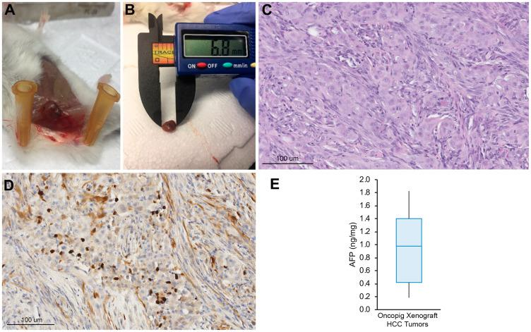 Oncopig HCC xenograft tumor development. ( A ) Representative SQ Oncopig HCC xenograft tumor. ( B ) Excised Oncopig HCC xenograft tumor. ( C ) H E (20×) of Oncopig HCC xenograft tumor reveals densely cellular subcutaneous nodule with interspersed fat cells. Intervening fibrous vascular septae noted. ( D ) On arginase-1 IHC (20×), epithelial cells show focal arginase-1 expression (brown) consistent with hepatocellular differentiation. ( E ) AFP expression across Oncopig HCC xenograft tumors ( n = 10).