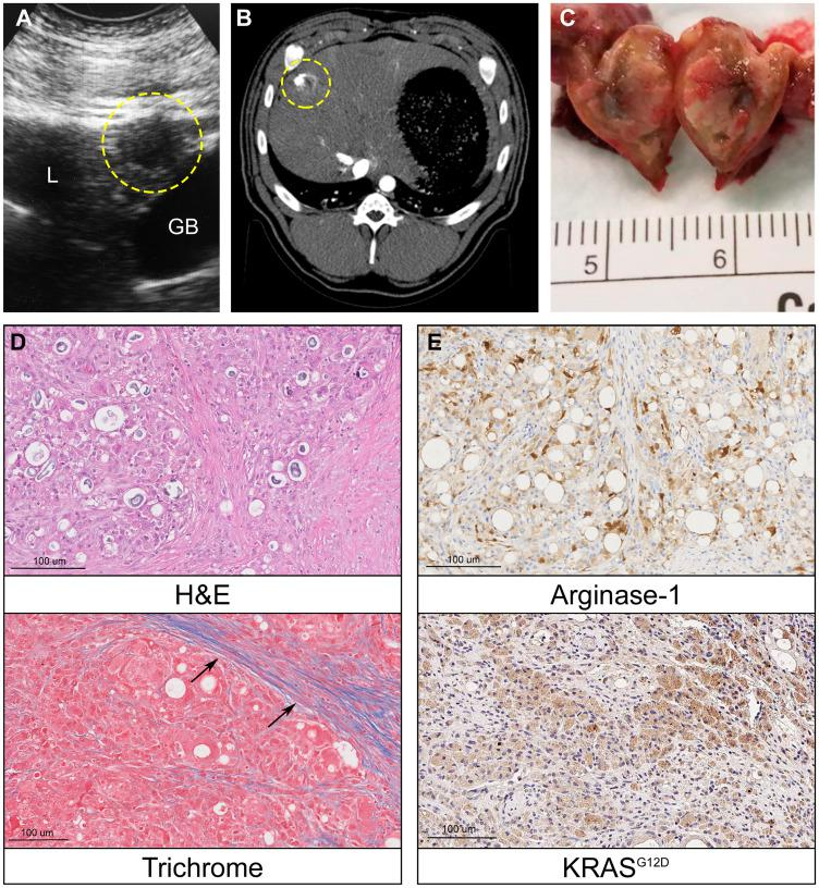 Oncopig intrahepatic HCC tumor formation. ( A ) Liver ultrasound depicting a hypoechoic 1 cm round intrahepatic HCC tumor (circled, L = liver, GB = gallbladder). ( B ) Contrast enhanced liver CT depicts same HCC tumor (circled). ( C ) Photograph of transected intrahepatic HCC tumor. ( D ) H E (20×) of Oncopig intrahepatic HCC tumor reveals architectural distortion characterized by expansion of liver cords, nuclear pleomorphism, anisonucleosis, and nodular fibrosis. Masson's trichrome of adjacent non-tumorous liver demonstrates dense collagen bands (arrows) consistent with METAVIR grade 2-3 fibrosis. ( E ) Arginase-1 IHC (20×) shows patchy arginase-1 expression (brown) consistent with hepatocellular differentiation. KRAS G12D IHC (20×) confirms KRAS G12D expression (brown) consistent with malignancy.