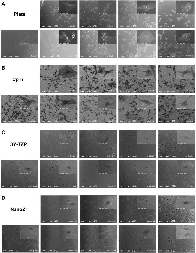 SEM observation of cell morphology of MC3T3-E1 cells cultured on different surfaces after 48h RNA interference treatment. Notes: ( A ) Plate; ( B ) CpTi; ( C ) 3Y-TZP; ( D ) NanoZr. MC3T3-E1 cells were transfected with a Negative Control siRNA or with siRNA that targets Syndecan-1 (#1, #2), Syndecan-2 (#1, #2), Syndecan-3 (#1, #2) and Syndecan-4 (#1, #2). Two different sequences of each Syndecan were used respectively. Magnification: 100× and 1000×. Abbreviations: CpTi, commercial pure titanium; 3Y-TZP, 3mol% yttria-stabilized tetragonal zirconia polycrystalline; NanoZr, nano-zirconia; siRNA, small interfering RNA; si-Sdc, small interfering-Syndecan; NC, negative control; SEM, scanning electron microscopy.
