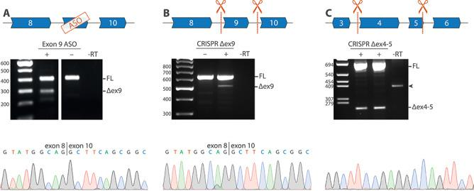 Targeted NOTCH3 exon exclusion using ASOs and CRISPR/Cas9 in vitro . ( A ) RT-PCR analysis of VSMCs after transfection with an ASO targeting exon 9, showing a band at ~ 300 bp, corresponding to the expected fragment size after exon 9 skipping, which was confirmed to be a correct exon 9 skip with Sanger sequencing. ( B ) Guide RNAs targeting NOTCH3 introns 8 and 9 were used to delete exon 9 from the genomic DNA of HEK293 cells. RT-PCR analysis confirmed exon 9 exclusion at the RNA level. ( C ) Guide RNAs targeting intron 3 and intron 5 were used to delete exon 4 and exon 5 from the genomic DNA from control (left lane) and CADASIL patient-derived VSMCs (right lane), which was confirmed with Sanger sequencing. FL, full length; −RT, condition without reverse transcriptase; Δex9, PCR product lacking exon 9; Δex4–5, PCR product lacking exon 4–5; arrowhead, aspecific genomic PCR product.