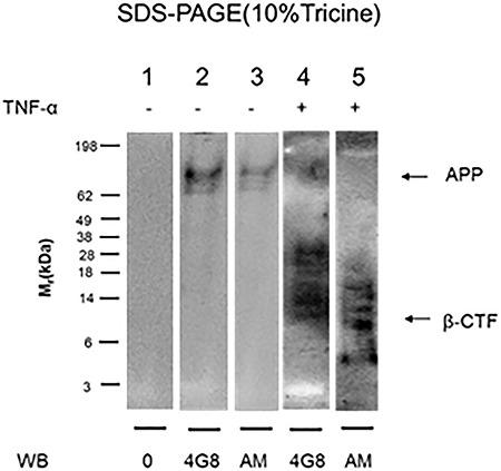 TNF-α induces formation of <t>SDS-stable</t> complexes between APP-βCTF and HS-anMan in growing mouse N2a neuroblastoma cells. The cells were either untreated (−) or grown for 48 h in the presence of 100 pg/ml of TNF-α (+). Immunoprecipitation (IP) was performed on the cell extracts with pAb A8717, which recognizes the C-terminus of APP. The same amount of protein was applied to each lane, and electrophoresis was followed by transfer to <t>PVDF</t> membranes and western blotting using either mAb 4G8 (for Aβ) or mAb AM (for HS-anMan). In lane 1, the primary antibody was omitted (0). A band corresponding to APP as in lane 4 was also seen when IP was performed with pAb Aβ40 (not shown).