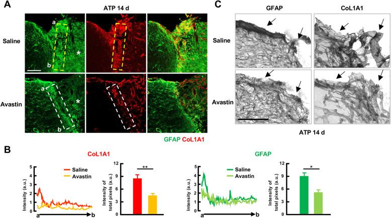 Avastin attenuates astrogliosis and blood vessel formation in the injured cortex. a, c Cortical sections were obtained from mice in which Avastin or PBS was infused into the ventricle 14 d post-ATP injection. GFAP and CoL1A1 were visualized with Alexa-488 and Alexa-594 conjugated secondary antibodies ( a ) or biotinylated secondary antibodies and DAB-based color reaction ( c ). b Relative fluorescence intensity of GFAP and CoL1A1 were measured using ZEN software and plotted. Values are means ± SEMs for animals treated with saline ( n = 4) or Avastin ( n = 3) (*, p