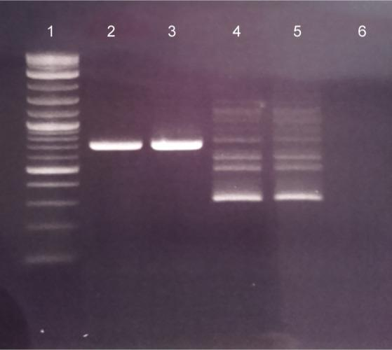 Agarose gel electrophoresis of the nPCR products. (1) 100-bp ladder; (2) OP with S. epidermidis DNA; (3) OP with P. mirabilis DNA; (4) IP with S. epidermidis DNA; (5) IP with P. mirabilis DNA; and (6) Negative control
