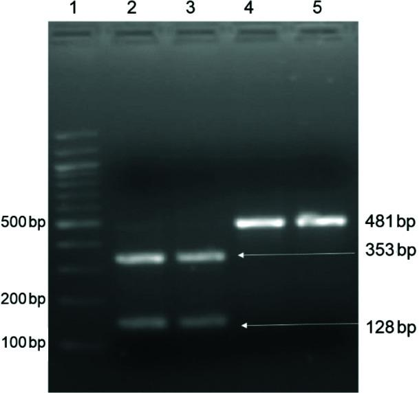 PCR RFLP of rrs gene after digestion with BmgB I. Lane 1, 100 bp DNA ladder; Lanes 2 and 3, 353 and 128 bp fragments with wild-type sequence; and Lanes 4 and 5, 481 bp fragments of mutant sequence