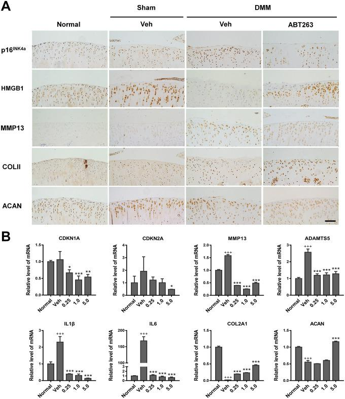 Elimination of SnCs by ABT263 and alleviation inflammatory microenvironment in vivo. ( A ) immunohistochemical analysis for expression of p16 INK4a , HMGB1, COLII and ACAN of rat cartilage after 2 weeks intra-articular injection of ABT263. Result from ABT263 of 1.0 mM was presented. Scale bar: 100 μm. ( B ) mRNA level analysis using real-time qPCR for CDKN1A, CDKN2A, <t>MMP13,</t> ADAMTS5, IL1β, IL6, COLII and ACAN in the rat knee joint. Data are shown as mean ± standard deviation. N = 3 per group. +p