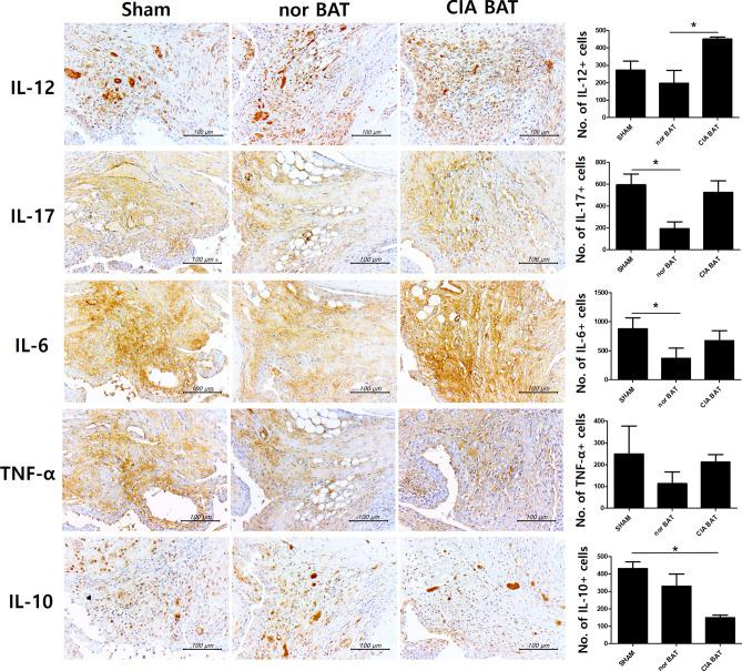 Transplantation of normal brown adipose tissue reduces secretion of proinflammatory cytokines. Immunohistochemistry images are shown with tissues stained by anti-IL-12, anti-IL-17, anti-IL-6, anti-TNF-α, and anti-IL-10 antibodies. *P