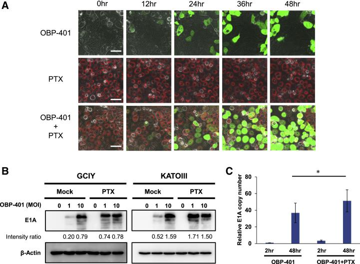 PTX Enhances the Replication Efficiency of OBP-401 in Human Gastric Cancer Cells (A) Time-lapse imaging of GCIY cells treated with OBP-401, PTX, or both. Green color indicates OBP-401 replication, and red color indicates PTX uptake. Scale bar, 50 μm. (B) Expression of adenoviral E1A proteins in GCIY and KATOIII cells treated with OBP-401 and PTX. β-actin was used as a loading control. The band intensity of E1A was normalized against that of β-actin and the ratios are shown. (C) Assessment of viral replication in GCIY cells. GCIY cells were treated with OBP-401 (1 MOI) or the combination of OBP-401 (1 MOI) and PTX (0.1 μM). Quantitative real-time PCR assay was performed to quantify the amount of viral E1A copy number. The copy number of viral E1A is defined as the E1A/GAPDH ratio relative to that of the sample 2 h after OBP-401 infection (2 h after OBP-401 infection = 1). Data are shown as means ± SD. Statistical significance was defined as p
