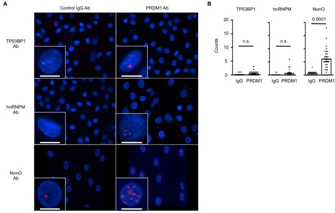 The interaction of NonO and PRDM1 in the nucleus of MO-DCs. Binding of candidate proteins with PRDM1 in primary MO-DCs was measured by PLA. (A) MO-DCs were incubated with normal rabbit IgG (left column) or with anti-PRDM1 antibodies (right column) together with anti-TP53BP1, anti-hnRNPM, or anti-NonO antibodies. Their proximal interaction was assessed by PLA and visualized as red dots. Nucleus was stained with DAPI (blue). Each Z-Stacks maximum intensity projection image is a representative from three independent experiments and captured 60x magnification. Scale bar = 10 μm. (B) Quantification of the PLA signal on MO-DCs is represented. PLA signals in each nucleus were quantified by Imaris software. In the plot, horizontal bars indicate the mean with SEM and each dot represents counts of individual nucleus ( n = 40–50). Significance determined by unpaired t -test.
