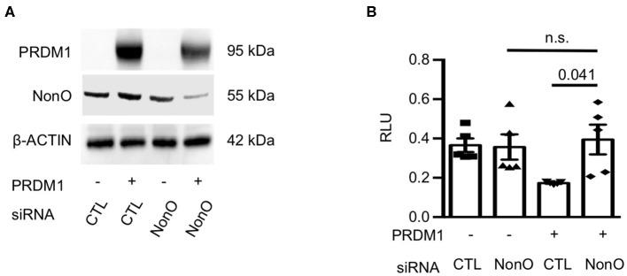 NonO regulates IL-6 promoter activity. (A) HEK-293 cells were transfected with NonO siRNA or PRDM1 expressing plasmid. The knockdown efficiency of siRNA and PRDM1 level was verified by immunoblott analysis. β- actin was used as a loading control. Gel image is a representative from two independent experiments. (B) The IL6 promoter activity under indicated conditions was determined by luciferase reporter gene analysis. pGL4.25 were used as control vectors. Mean values of relative luciferase unit (RLU; normalized on Renilla luciferase) from three independent experiments. Bar is a mean ± SEM ( n = 4). Significance determined by unpaired t -test.