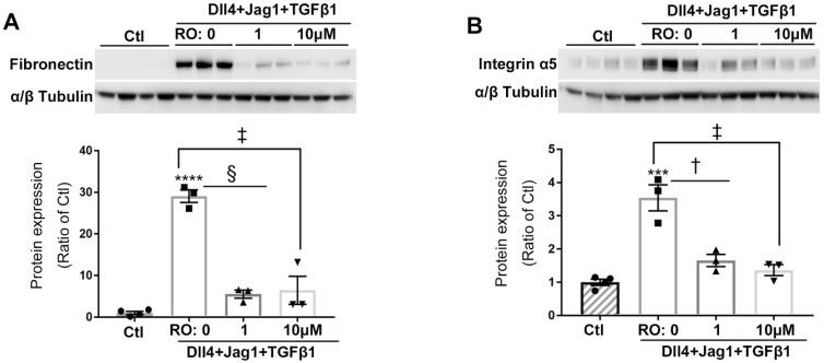 Notch inhibition reduced expression of ECM proteins in human Müller cells treated with Notch and TGFβ ligands. RO inhibited the overexpression of fibronectin (A) and integrin α5 (B) in Müller cells treated with Notch ligands Dll4 and Jagged1 (both 50 ng/ml) and TGFβ1 (10 ng/ml) for 24 hours. ****P