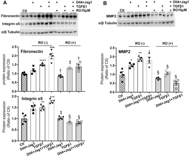 RO4929097 (RO) inhibits overexpression of ECM proteins in human Müller cells treated with Notch and TGFβ ligands. Treatment of Müller cells with Notch ligands (Dll4 and Jagged1, both 50 ng/ml) or TGFβ1 (10 ng/ml) for 24 hours promoted expression of fibronectin, intergrin α5 (A) and MMP2 (B) , with the most profound effects observed in the group treated with Notch ligands in combination with TGFβ1. RO treatment significantly inhibited overexpression of fibronectin, intergrin α5 and MMP2 in Müller cells stimulated by Notch ligands, TGFβ1 or a combination of both. *P