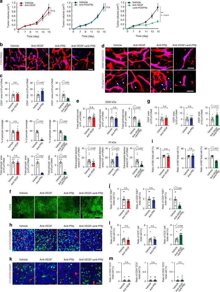 Impact of anti-PDGFRβ on tumor growth, angiogenesis, and tumor microenvironment. a Tumor growth of T241-FGF-2 fibrosarcomas in response to anti-VEGF, anti-PDGFRβ, and anti-VEGF plus anti-PDGFRβ treatments ( n = 7/6/6/7; P (Vehicle vs combination therapy) = 0.0013). Time indicates after the start of treatment. b Microvascular density and perivascular coverage of anti-VEGF-, anti-PDGFRβ-, and anti-VEGF plus anti-PDGFRβ-treated T241-FGF-2 fibrosarcomas. Red indicates CD31 + microvessels and blue indicates NG2 + pericytes. Bar = 50 μm. c Quantification of CD31 + microvessel density ( n = 7 each; P (Vehicle vs anti-PDGFRβ) = 0.0047; P (Vehicle vs combination) = 0.0007), NG2 + pericyte coverage ( n = 7 each; P (Vehicle vs anti-PDGFRβ)