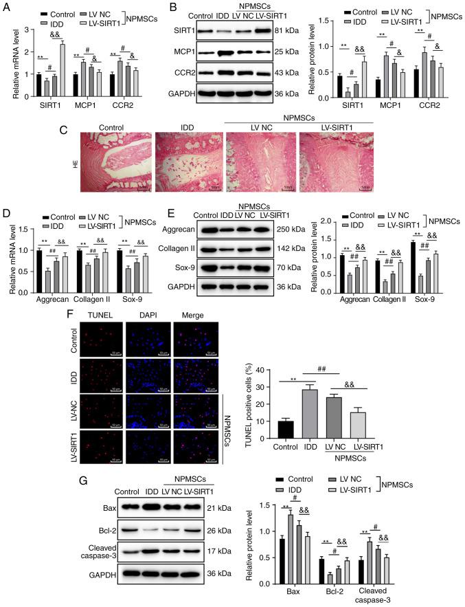 Transplantation of rat NPMSCs overexpressing SIRT1 relieves IDD in rats by downregulating the <t>MCP1/CCR2</t> axis. (A) RT-qPCR and (B) western blot analyses showed increased mRNA and protein expression of MCP1 and CCR2, and reduced mRNA and protein expression of SIRT1 in the IDD group compared with the control group. In contrast, the mRNA and protein expression of MCP1 and CCR2 decreased and mRNA and protein expression of SIRT1 increased in the IDD rats after transplantation of the NPMSCs or SIRT1-overexpressing NPMSCs, n=4. (C) H E staining revealed an amelioration of the disordered intervertebral structure after the transplantation of NPMSCs or SIRT1-overexpressing NPMSCs, n=6. Based on the (D) RT-qPCR and (E) western blot analyses, lower mRNA and protein expression levels of aggrecan, collagen II and Sox-9 were observed in IDD rats compared with in rats of the control group, n=4. (F) TUNEL staining revealed increased cell apoptosis in IDD rats compared with rats in the control group, which was reduced by NPMSC transplantation and even further decreased after the transplantation of SIRT1-overexpressing NPMSCs, n=6. (G) Western blotting showed higher protein expression of Bax and cleaved caspase-3 and lower expression of Bcl-2 in the IDD group compared with in the control group, and these changes were reversed by the transplantation of NPMSCs or SIRT1-overexpressing NPMSCs, n=4. Data in panel F were analyzed using one-way ANOVA; data in panels A, B, C, D, E and G were analyzed using two-way ANOVA. Tukey's multiple comparisons test was applied as the post hoc test. ** P