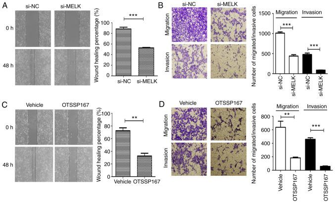 MELK knockdown reduces migration and invasion in vitro . (A) Wound healing assays revealed the reduced migratory potential of cells following knockdown of MELK. (B) <t>Transwell</t> assays revealed reduced migratory and invasive potential of MNNG/HOS cells following knockdown of MELK. (C) Migration (wound healing assay) and (D) migration and invasion (Transwell assays) were reduced in osteosarcoma cells following treatment with OTSSP167. **P