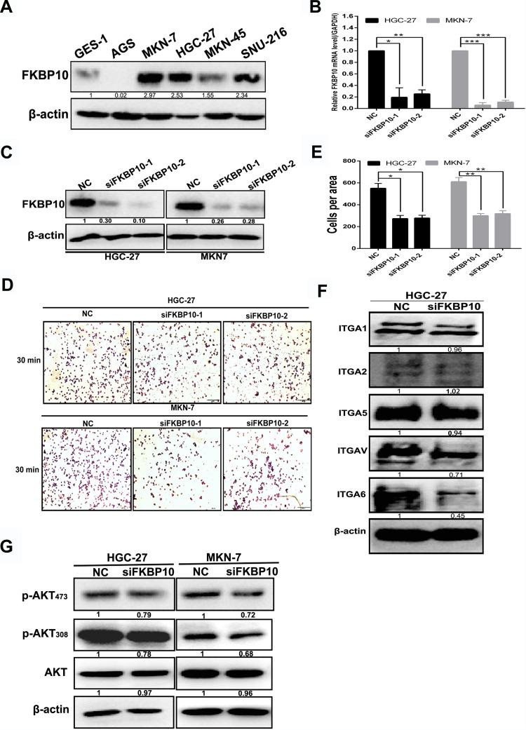 FKBP10 promotes adhesion of GC cells (A) FKBP10 protein expression in gastric cancer cell line and GES-1. ( B ) and ( C ) FKBP10 mRNA and protein expression levels were tested by qRT-PCR and Western blot analysis in HGC-27 and MKN-7 cells after transfected with siFKBP10 for 48 hours. ( D ) Adhesion assay was used to detect changes in adhesion ability of HGC-27 and MKN-7 cells after transfected with siFKBP10 for 48 hours. ( E ) Quantifications of cells are shown as proportions of the number of control cells. Original magnification, 200×. Scale bar: 100 µM. ( F ) and ( G ) <t>Integrin</t> α1, integrin α2, integrin α5, integrin αV, integrin <t>α6,</t> AKT, P-AKT 308, P-AKT 473 proteins were detected by Western blot analysis in HGC-27 and MKN-7 cells after transfected with siFKBP10 for 48 hours. β-actin was used as a loading control in Western blot.(*P