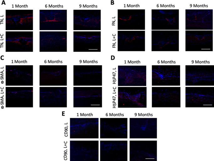 Expression of tenascin-C, fibronectin, α-SMA, HSP47, and CD90 for the L and L + C groups at different time points. The staining was distinct for tenascin-C (TN; A) and fibronectin (FN; B) in all eyes at 1 month, and the extent was lesser in the L + C group than L group. There was minimal staining of α-SMA at all time points in all eyes (C). Significant upregulation of HSP47 was observed in all eyes (D), with comparable expression in L and L + C groups. Moderate expression of CD90 at 1 month in all eyes was seen (E). The staining for all the markers resolved with time. Nuclei were counterstained with DAPI ( blue ). Original magnification: 100×. Scale bar : 500 µm.