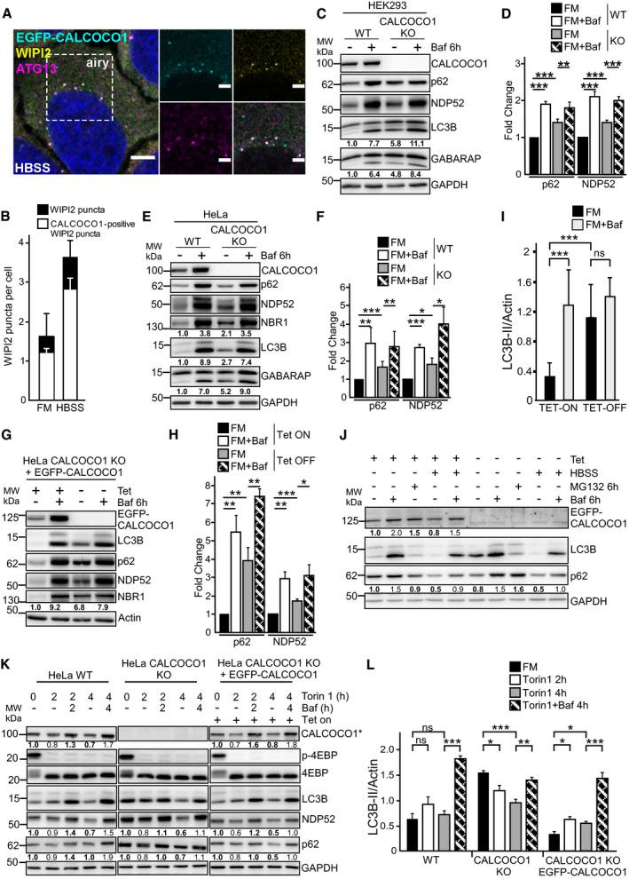 CALCOCO 1 promotes basal autophagic flux but not bulk autophagy HeLa CALCOCO1 KO cells stably expressing EGFP‐CALCOCO1 were starved for 4 h and then immunostained with <t>anti‐ATG13</t> and <t>anti‐WIPI2</t> <t>antibodies.</t> Scale bars <t>in</t> (A) are 5 μm for the confocal microscopy images and 2 μm for the airyscans. In (B), the error bars represent mean ± SD of puncta per cell from three independent experiments and 100–200 cells per each experiment. Immunoblot analysis of indicated cell lines treated as indicated. Numbers below the blots represent relative intensity of the bands in the shown blots normalized against the loading control (GAPDH or <t>actin).</t> The asterisk in (K) indicates that endogenous CALCOCO1 is detected in WT and KO cell extracts and EGFP‐CALCOCO1 in cells extracts from the rescued cells. In (D, F, H, I, and L), the bars represent the mean ± SD of band intensities relative to the actin or GAPDH loading control as quantified using ImageJ, n = 5 in (I), n = 3 in others. Statistical comparison was analyzed by one‐way ANOVA and significance displayed as *** P ˂ 0.001, ** P ˂ 0.005, * P ˂ 0.01; ns is not significant.