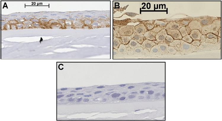 Human corneal epithelial cells express AQP3 in situ. Formalin-fixed human corneas obtained from the Georgia Eye Bank were paraffin-embedded and sectioned. After antigen retrieval, sections were incubated with an antibody recognizing AQP3 and visualized with an ABC staining kit using 3,3′-diaminobenzidine as chromogen (brown staining), as described in the Materials and Methods section. Sections were counterstained with hematoxylin (blue staining) and photographed. Results are representative of the staining of random sections of right and left corneas from at least three individuals. ( A , B ) AQP3 staining observed in two different corneas. ( C ) A negative control performed by omission of the primary antibody.