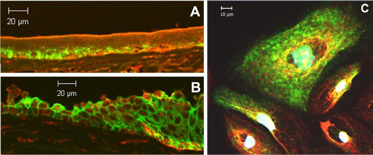 AQP3 and PLD2 co-localize in the cornea in situ and in immortalized human corneal limbal epithelial cells in vitro. Formalin-fixed human corneas obtained from the Georgia Eye Bank were paraffin-embedded and sectioned onto microscope slides. Sections were stained using an Opal immunofluorescence kit and incubated with a rabbit polyclonal antibody recognizing PLD2 and a mouse monoclonal antibody against AQP3. Sections were then processed according to the supplier's instructions with red staining (Opal 570) representing PLD2 and green (Opal 520) representing AQP3. Staining was visualized using confocal microscopy on a Zeiss laser-scanning microscope. ( A ) A more central region of the corneal epithelium, ( B ) the limbal region of the cornea, and ( C ) immortalized human corneal limbal epithelial cells are shown. Results are representative of at least three corneas or cell passages; negative controls in which primary antibodies were omitted demonstrated essentially no staining.