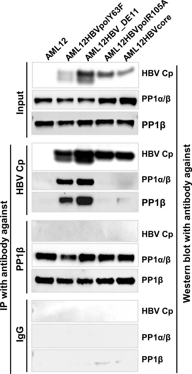PP1α/β was encapsidated into pgRNA and DNA-containing nucleocapsids. AML12 and its derived cell lines supporting tet-off inducible accumulation of empty capsids (AML12HBVcore and AML12HBVpolR105A), pgRNA-containing (AML12HBVpolY63F) and both pgRNA- and DNA-containing (AML12HBV_DE11) nucleocapsids were cultured in the absence of tet for 2 days. The cells were lysed with <t>IP</t> <t>lysis</t> <t>buffer.</t> IP assays were performed with an antibody against HBV Cp, PP1β or control IgG. HBV Cp, PP1α and/or β in input cell lysates and immunocomplexes of IP were detected by Western blot assays with the corresponding antibodies.