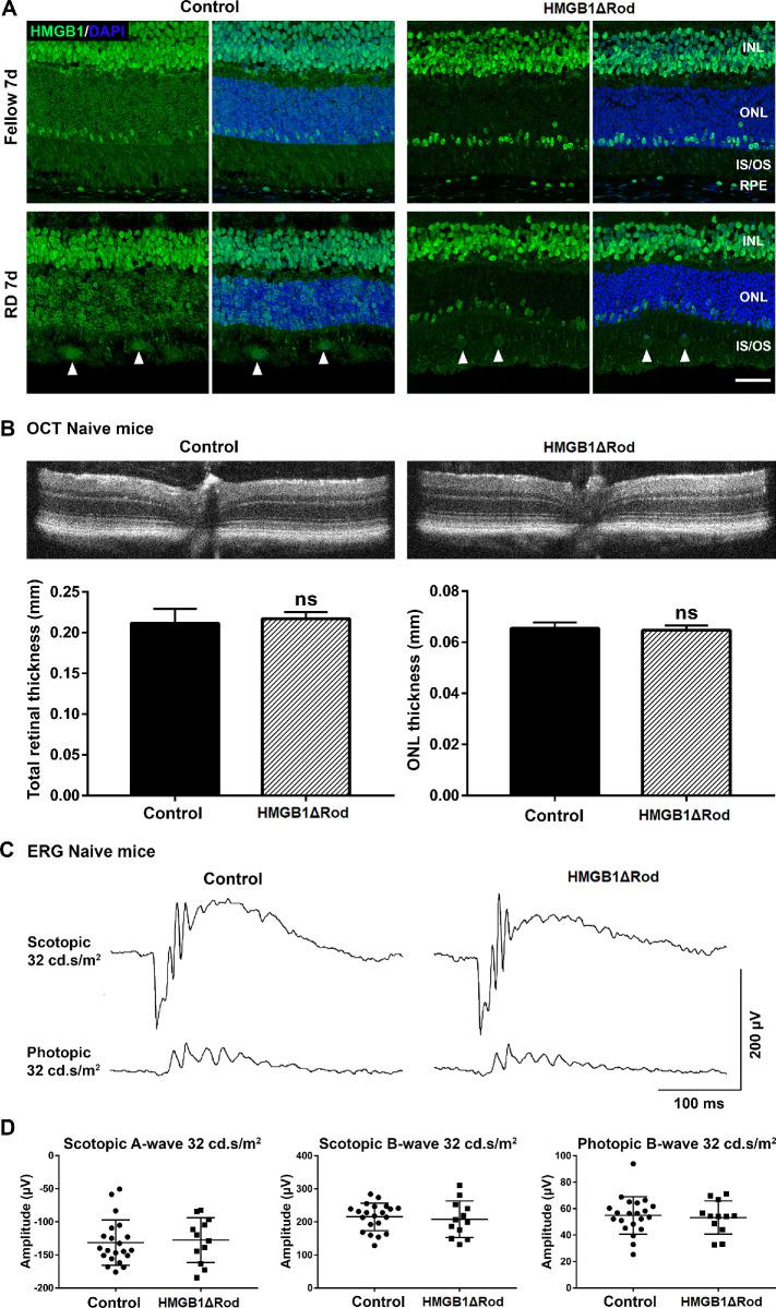 Conditional knockout of HMGB1 in rod photoreceptors does not affect retinal thickness or ERG response at baseline. ( A ) Fellow and detached retinas at 7 dprd were probed with HMGB1 Ab to confirm the complete and specific knockout of HMGB1 in rod photoreceptors in HMGB1ΔRod mice. Rho-Cre + mice served as controls. Nuclei were counterstained with DAPI. Arrowheads show the infiltrated cells positive for HMGB1 IF. Scale bar : 50 µm. ( B – D ) OCT imaging and ERG analyses were performed in naive HMGB1ΔRod and control mice at 20 weeks of age. Represented OCT images are shown in ( B ). The thicknesses of the total retina and ONL were measured at four points (nasal, temporal, superior, and inferior) at a distance of 500 µm from the optic nerve head. Represented ERG response traces are shown in ( C ). The amplitudes of scotopic a-wave and b-wave and photopic b-wave at the intensity of 32 cd•s/m 2 are shown in ( D ). Control mice, n = 11; HMGB1ΔRod mice, n = 6. Data were plotted with mean ± SD. Paired Student's t -test. ns, not significant.