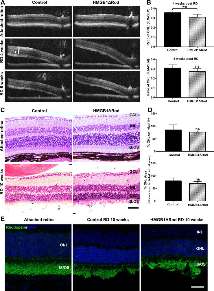 Conditional knockout of HMGB1 from rods accelerates their degeneration during RD. ( A ) OCT images in attached and detached retinas at 4 and 8 weeks post-RD in HMGB1ΔRod and control mice. Due to the angle created by retinal detachment, a novel method was developed to measure the thickness of the retina to ensure that corresponding points on the retinas were measured (see Materials and Methods). ( B ) The thickness of ONL and the thickness from the ILM to the OLM were measured at 500 pixels away from the optic nerve head using ImageJ. The ONL/(ILM-OLM) ratio was calculated and graphed. ( C ) Hematoxylin and eosin staining of retinal sections was performed at 10 weeks post-RD in HMGB1ΔRod and control mice. ( D ) The nuclei count in the ONL in the detached portion of retinal sections was performed using ImageJ. The ONL area and the area between the ILM and OLM in the detached portion of the retina were also measured. The ONL/(ILM-OLM) area ratio was calculated. Normalized data were graphed with controls set as 100%. ( E ) Retinal sections of HMGB1ΔRod and control mice at 10 weeks post-RD were probed with antirhodopsin Ab. Nuclei were counterstained with DAPI. Scale bars : 50 µm. ** P