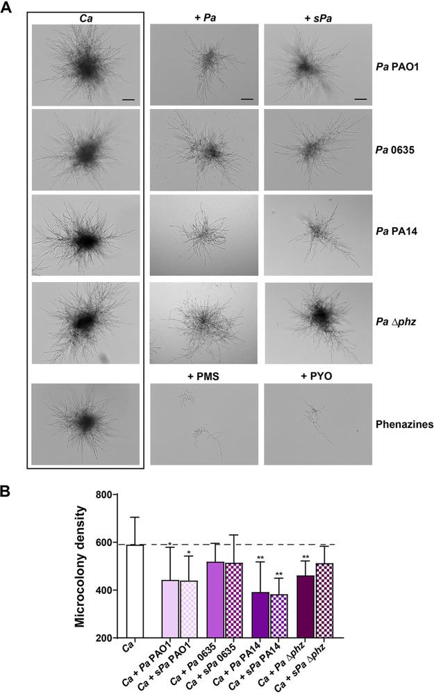 C. albicans microcolony density is decreased by P. aeruginosa and phenazines. (A) C. albicans microcolonies were cultured using RPMI 1640 medium at 37°C in 5% CO 2 , along with P. aeruginosa strains POA1, 0635, or PA14 or of fresh-filtered P. aeruginosa culture supernatant (10%; s Pa ), phenazine <t>methosulfate</t> (PMS; 5 μM), or pyocyanin (PYO; 20 μM) for 17 h. C. albicans incubated alone was used as control. Images were obtained using bright-field microscopy, and the microcolony density was calculated using ImageJ. (B) The microcolony density per square micron was obtained by using ImageJ. The addition of three P. aeruginosa strains or s Pa each significantly decreased microcolony density compared to C. albicans grown in culture media alone. Experiments were carried out in duplicate, and the means ± the SD of four independent experiments are shown. Significance was obtained by Student t test or one-way ANOVA with post ad hoc Dunnett's multiple-comparison test (*, P