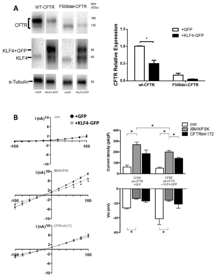 KLF4 overexpression caused a downregulation of wt-CFTR expression and function. ( A ) Transfection with KLF4-GFP was performed, and the effects of KLF4 overexpression on CFTR expression were assessed by WB. Representative WB of KLF4 and CFTR expression in wt- and F508del–CFTR CFBE cells transfected with either negative control (+GFP) or KLF4-GFP (+KLF4-GFP). Beta-tubulin was used as loading control. Data are normalized to loading control and shown as relative expression (vs. wt-CFTR (+GFP)). (n = 3, unpaired t -test, p