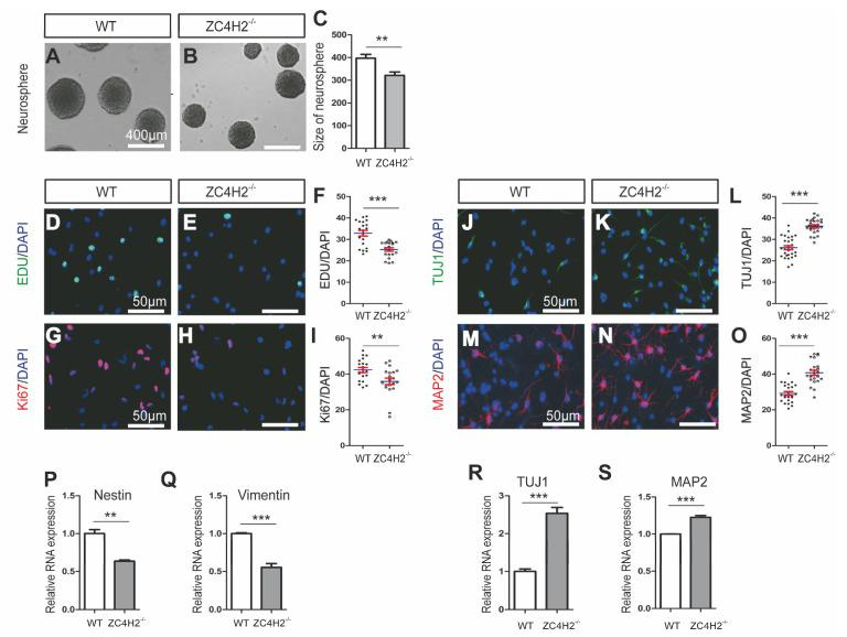 Loss of ZC4H2 inhibited neural stem cell (NSC) proliferation and promoted differentiation of NSCs. ( A – C ) The size (diameter) of neurosphere between wild type (WT) NSCs ( A ) and ZC4H2 −/− NSCs ( B ). Scale bar: 400 µm. ( C ) The quantification data (diameter) for ( A , B ) [ 22 ]. ( D – I ) Loss of ZC4H2 inhibited NSC proliferation by EDU incorporation assay ( D – F ) and Ki67 immunostaining ( G – I ). The nuclei were marked by DAPI. Scale bar: 50 µm. ( F , I ) The quantification data (percentage of EDU/DAPI and Ki67/DAPI) for ( D , E , G , H ), respectively. ( J – O ) Immunofluorescence analyses of the differentiated neurons from WT and ZC4H2 −/− NSCs for β-tubulin III (TUJ1) ( J – L ) and MAP2 ( M – O ). ( L , O ) The quantification data (percentage of TUJ1/DAPI and MAP2/DAPI) for ( J , K , M , N ), respectively. ( P , Q ) Relative mRNA expression levels of stemness marker genes (Nestin and Vimentin) in WT and ZC4H2 −/− NSCs. ( R , S ) Relative mRNA expression levels of neuronal marker genes (TUJ1 and MAP2) in differentiated WT and ZC4H2 −/− NSCs. The β-actin was used as an internal control. ** p