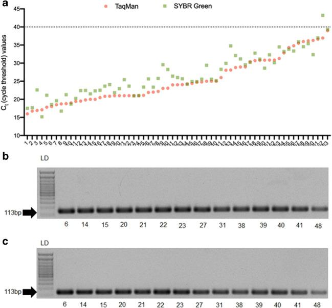 Comparison of Ct values obtained by TaqMan, SYBR Green, and one-step/two-step RT-PCR assays. a Ct values of 63 clinical samples detected with TaqMan and SYBR Green RT-qPCR. b , c Agarose gels of amplified fragments by one-step RT-PCR and two-step PCR assays, respectively, of 14 representatives' clinical samples. The 600-bp marker in the ladder (LD) is indicated in the picture. The arrow points to the fragment of 113 base pairs (bp) amplified with SARS-CoV-2-specific E gene primers