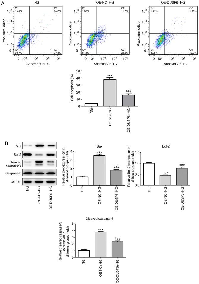 DUSP6 overexpression alleviates HG-induced podocyte apoptosis. (A) Apoptotic cells were detected via flow cytometry. (B) The protein expression levels of Bcl-2, Bax, cleaved <t>caspase-3</t> and caspase-3. ***P
