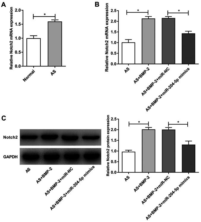 Notch2 expression in hip joint capsule tissues and ligament fibroblasts. (A) Notch2 expression in hip joint capsule tissues. (B) Notch2 mRNA expression in AS-derived ligament fibroblasts. (C) Notch2 protein expression in AS-derived ligament fibroblasts. GAPDH was used as the internal control. *P