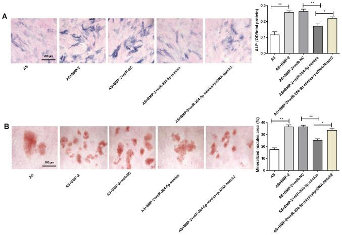 miR-204-5p inhibits the osteogenic differentiation of ligament fibroblasts by targeting Notch2. (A) ALP staining and (B) Alizarin Red S staining. *P
