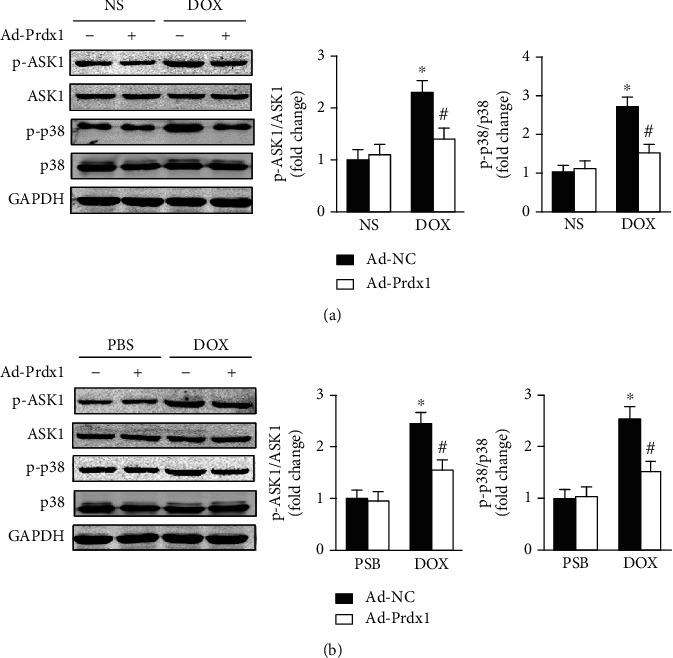 Prdx1 overexpression inhibits ASK1/p38 pathway activation. (a) Western blots showing the p-ASK1, ASK1, p-p38, and p38 levels in the hearts of mice ( n = 4). (b) Western blots showing the p-ASK1, ASK1, p-p38, and p38 levels in NVRMs ( n = 4). ∗ P