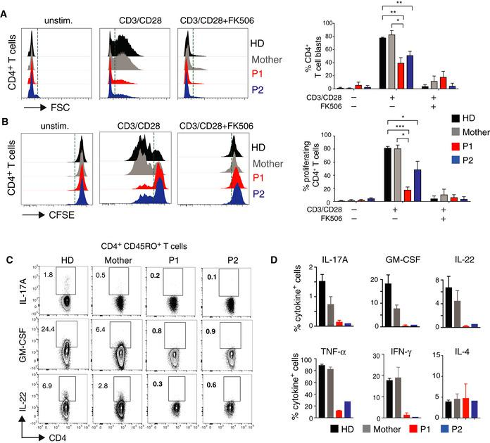 STIM 1 p.L374P mutation causes defect in T‐cell proliferation and cytokine production Cell size (A) and proliferation (B) of CD4 + T cells from P1 (red), P2 (blue), their mother (gray), and a HD (black) stimulated with anti‐CD3 (5 μg/ml) and anti‐CD28 (10 μg/ml) in the presence or absence of 1 μM FK506 for 24 h. (A) Representative histograms of FSC (left panel) and percentages of T‐cell blasts (defined as cells to the right of the dotted vertical line) analyzed by flow cytometry (right panel). (B) Representative histograms of CFSE dilution (left panel) and percentages of proliferating cells (defined as cells to the left of the dotted vertical line) (right panel). Bar graphs in A and B are the mean ± SEM from two independent experiments. Cytokine production by PBMC from P1, P2, the mother, and an unrelated HD after stimulation with PMA (40 ng/ml) and ionomycin (500 ng/ml) for 4 h. Cytokines were analyzed by flow cytometry following surface staining with antibodies against CD3, CD4, and CD45RO, permeabilization and intracellular cytokine staining for GM‐CSF, IL‐22, and IL‐17A. Representative flow cytometry plots (C) and quantification of Th17 (GM‐CSF, IL‐22, IL‐17A), Th1 (TNF‐α, IFN‐γ), and Th2 (IL‐4) cytokines (D). Data represent the mean ± SEM from two independent experiments. Data information: Statistical analysis by unpaired Student's t ‐test. * P