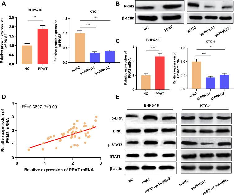 PPAT activated ERK and STAT3 signaling pathway by up-regulating PKM2 expression. ( A and B ) Western blot was used to detect the expression of PKM2 protein in BHP5-16 and KTC-1 cells after overexpression or knockdown of PPAT. ( C ) qRT-PCR was used to detect the expression of PKM2 mRNA in BHP5-16 and KTC-1 cells after overexpression or knockdown of PPAT. ( D ) qRT-PCR was used to detect the correlation between PPAT mRNA and PKM2 mRNA expression in TC tissue. ( E ) Western blot was used to detect the p-ERK, ERK, p-STAT3, and STAT3 after PPAT and PKM2 were modulated in TC cells. The experimental results were analyzed by Student's t -test, and the difference was statistically significant with P