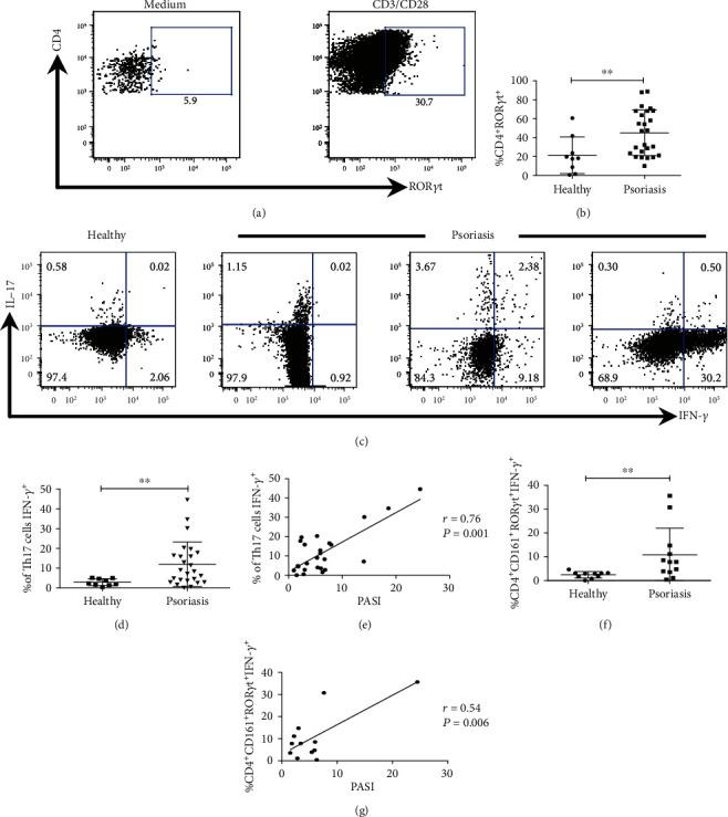 Th17 cells in peripheral blood of psoriasis patients could display conventional or pathogenic phenotype and correlate with the PASI score. PBMC from healthy and psoriasis subjects were stimulated for 72 h with anti-CD3 and anti-CD28 antibodies and analyzed by flow cytometry. (a) Representative plots for Th17 cell (CD4 + ROR γ t + ) identification. (b) Quantification of the percentage of Th17 cells (CD4 + ROR γ t + ) in healthy ( n = 9) and psoriasis subjects ( n = 25), Mann-Whitney U test. (c) Representative plots of IL-17 and IFN- γ expression by Th17 cells in a healthy subject and three psoriasis patients. (d) Percentage of pathogenic Th17 cells (CD4 + ROR γ t + IFN- γ + ) in healthy donors ( n = 9) and psoriasis patients ( n = 25), Mann-Whitney U test. (e) Spearman's correlation between the percentage of pathogenic Th17 cells (CD4 + ROR γ t + IFN- γ + ) and the PASI score ( n = 25). (f) Quantification of pathogenic Th17 lymphocytes (CD4 + CD161 + ROR γ t + IFN- γ + ) in healthy ( n = 10) and psoriasis ( n = 12) subjects, Mann-Whitney U test. (g) Spearman's correlation between the percentage of pathogenic Th17 cells (CD4 + CD161 + ROR γ t + IFN- γ + ) and the PASI score ( n = 12). ∗∗ P