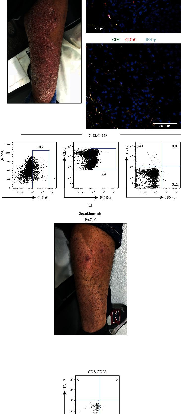 Evaluation of the Th17 cell phenotype is helpful to select the biological treatment of a psoriasis patient. (a) Photography of psoriasis patient P91 (pretreatment, PASI 6.3) shows the most representative skin lesion. LS immunofluorescence staining for Th17 cells using anti-CD4 (green), anti-IFN- γ (cyan), anti-IL-17 or anti-CD161 (red), and nuclei (blue). PBMC were stimulated with anti-CD3/CD28. CD161 and ROR γ t were evaluated in CD4 T cells by flow cytometry as well as the production of IL-17 and IFN- γ in Th17 cells (bottom panels). (b) Photography of a psoriasis patient after secukinumab treatment (PASI 0) taken in the same anatomical site (a). Flow cytometry plot of IL-17 and IFN- γ expression in Th17 cells. Scale bar = 20 μ m.