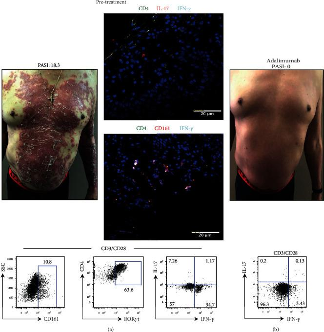 Determination of the pathogenic phenotype of Th17 cells in a psoriasis patient is useful to choose the biological treatment. (a) Prior to treatment, an integral analysis of Th17 cells was performed in patient P52 (PASI 18.3). The photograph shows the most significant psoriatic lesion. Microscopy images show the evaluation of Th17 cells in the lesional skin using antibodies anti-CD4 (green), anti-IFN- γ (cyan), anti-IL-17 or anti-CD161 (red), and nuclei (blue). Flow cytometry analyses of CD161 and ROR γ t expression in CD4 cells and production of IL-17 and IFN- γ in Th17 cells after stimulation. (b) Psoriasis patient photograph after adalimumab administration (PASI 0). Evaluation of IL-17 and IFN- γ expression in Th17 cells by flow cytometry (bottom plot). Scale bar = 20 μ m.