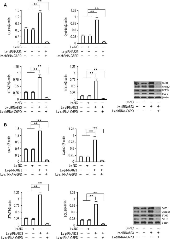piRNA‐823 up‐regulates the expression of functional proteins CyclinD1, STAT3 and Bcl‐2 through G6PD. A, HCT‐116, B, Lovo. Western blotting was performed 72 h after virus infection. The protein was detected by β‐actin, and the size of G6PD, CyclinD1, STAT3, Bcl‐2 and β‐actin was 53 kD, 33 kD, 90 kD, 26 kD and 43 kD. All data were expressed as mean ± SD, and the experiment was set to 3 biological replicates (n = 3). ** P