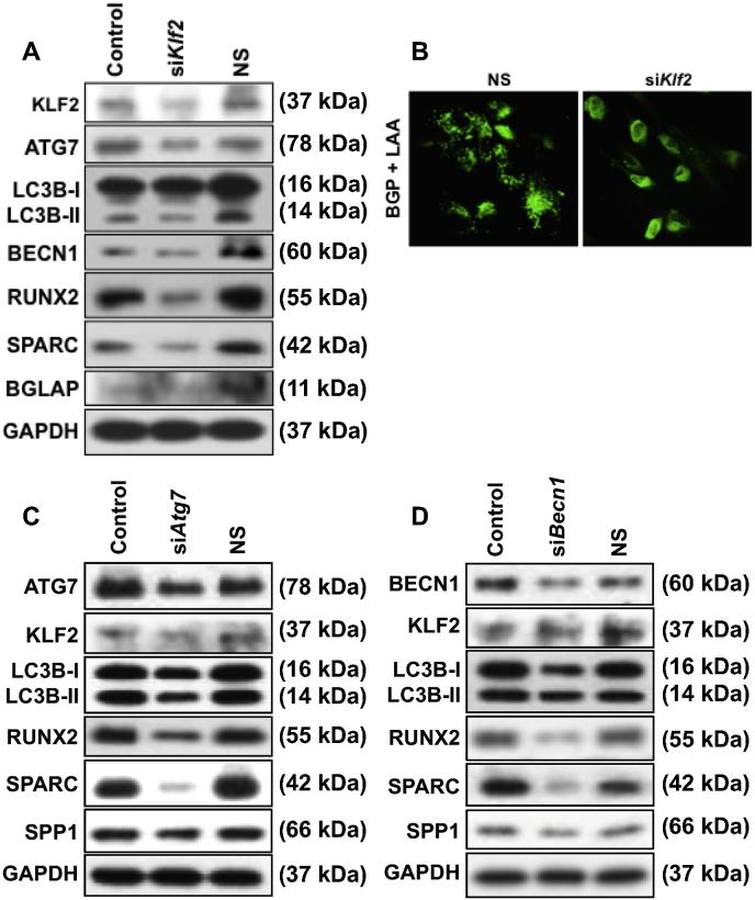 Knockdown of KLF2 or ATG7 or BECN1 reduced autophagy-related molecules and OB differentiation-related markers. KLF2 or ATG7 or BECN1 was knocked down in DPSCs and cells were cultured in β-glycerophosphate plus l -ascorbic acid-containing medium. A. Western blot analysis for detection of autophagy-related molecules and OB differentiation-related markers after knockdown of KLF2. B. MDC staining for detection of autophagy vesicles after knockdown of KLF2. C. Western blot analysis for detection of autophagy-related molecules and OB differentiation-related markers after knockdown of ATG7. D. Western blot analysis for detection of autophagy-related molecules and OB differentiation-related markers after knockdown of BECN1.