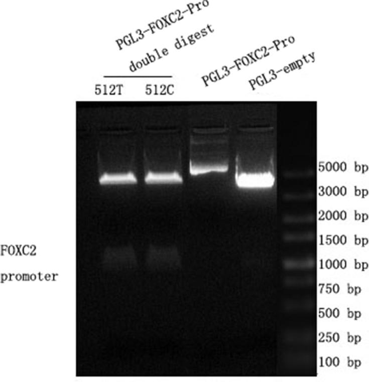 Results of plasmid enzymatic digestion. PGL3 basic plasmid was successfully connected into the 512T and 512C pro. In the figure, the right-most band 5 is Marker, band 1 is the double enzyme digestion product of pgl3-basic-FOXC2-pro-512-T, band 2 is the double enzyme digestion product of pgl3-basic-FOXC2-pro-512-C, band 3 is the PGL3-FOXC2-pro, and band 4 is the PGL3- empty.