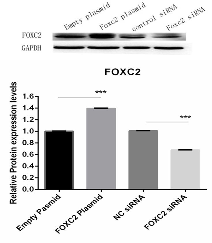 Expression of FOXC2 protein in adipocytes transfected with FOXC2 overexpression plasmid or siRNA. ***P
