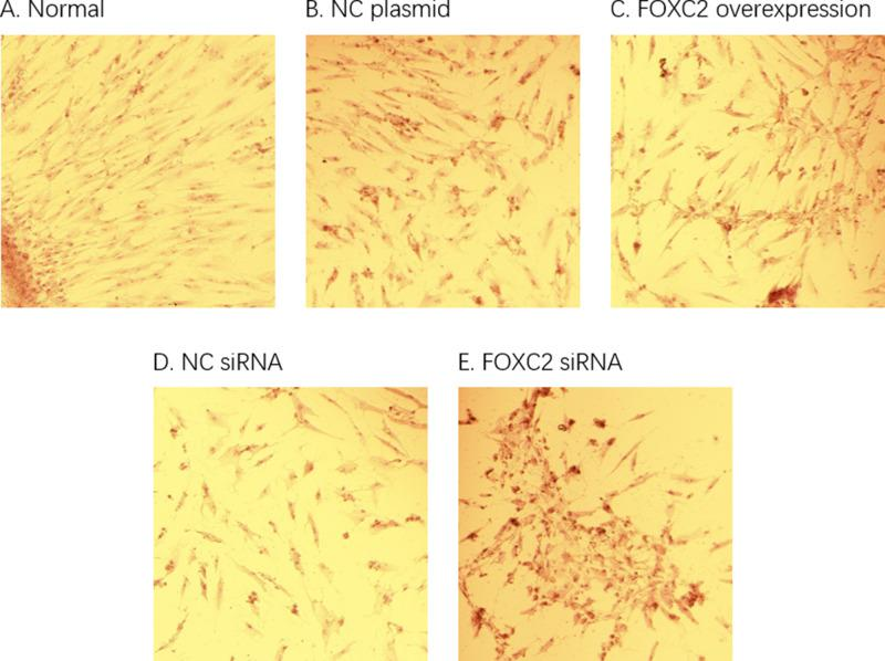 Adipocyte differentiation and Oil Red O staining. The ( A ) group was cultured with normal differentiation. Compared to NC siRNA group ( D ), the oil red staining was intensified in cells transfected with FOXC2 siRNA ( E ), indicating that the adipose differentiation of the cells was significantly increased. Compared to NC plasmid ( B ), oil Red O staining was reduced in FOXC2 overexpression group ( C ), suggesting a decreased fat formation.