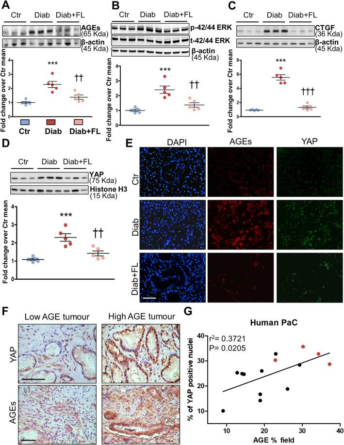 Association between AGE levels (carbonyl stress burden), ERK 1/2 phosphorilation status and YAP activation in murine and human PaC. Representative Western blots for AGEs ( a ), phosphorylated and total ERK 1/2 ( b ), CTGF ( c ) and nuclear YAP ( d ) in control (Ctr), diabetic (Diab), and Diab treated with FL-926-16 (Diab+FL) KCM mice at the time of sacrifice and relative band densitometry analysis from five mice per group. Each dot represents one case and bars represent mean±SEM. Dual-label immunofluorescence ( d ) for AGEs (red) and YAP (green). DAPI (blue): 4′,6-diamidino-2-phenylindole. Original magnification: 250X, scale bar: 200μm. Active (non-phosphorylated) YAP immunohistochemistry staining ( e , upper panels, original magnification: 400X, scale bar: 200μm) in representative low and high carbonyl stress human pancreatic adenocarcinomas as assessed by their AGE level ( e , lower panels, original magnification: 250X, scale bar: 200μm). Linear regression analysis ( f ) of the correlation between the ratio of YAP-positive nuclei to total nuclei with percentage of tumour tissue positive for AGE staining ( n =14). Red dots=patients with a clinical diagnosis of diabetes mellitus prior to undergoing surgery; black dots=non-diabetic subjects. Post hoc multiple comparison: *** P